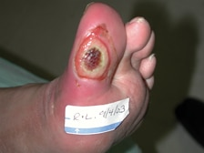Infected foot ulcer