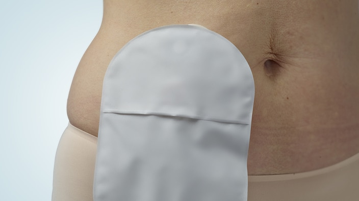 How do I learn about adjusting to life with a stoma?